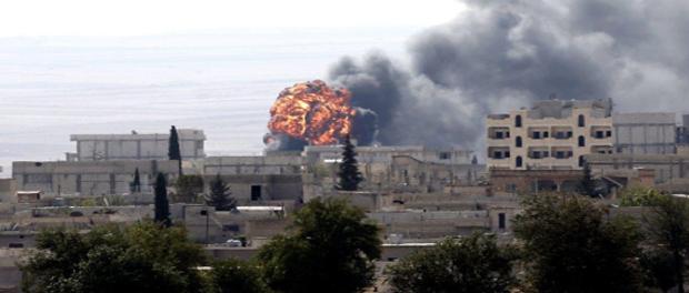 kobane-burns